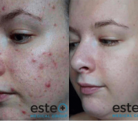 Acne / Acne Scarring