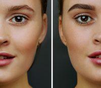 FUE Eyebrow Transplant